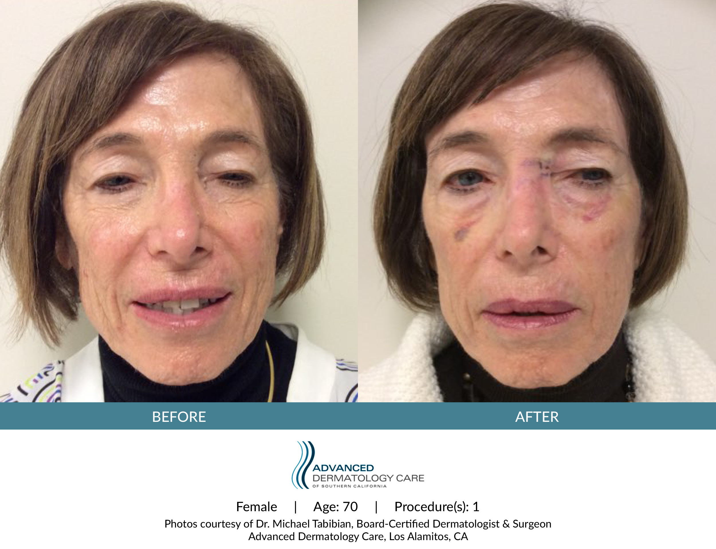 Microneedling Before & After - Diane