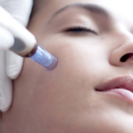 Benefits of Microneedling | Advanced Dermatology Care