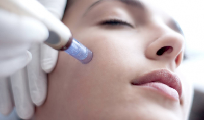Microneedling Treatment on Face