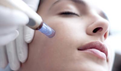 Benefits of Microneedling | Advanced Dermatology Care