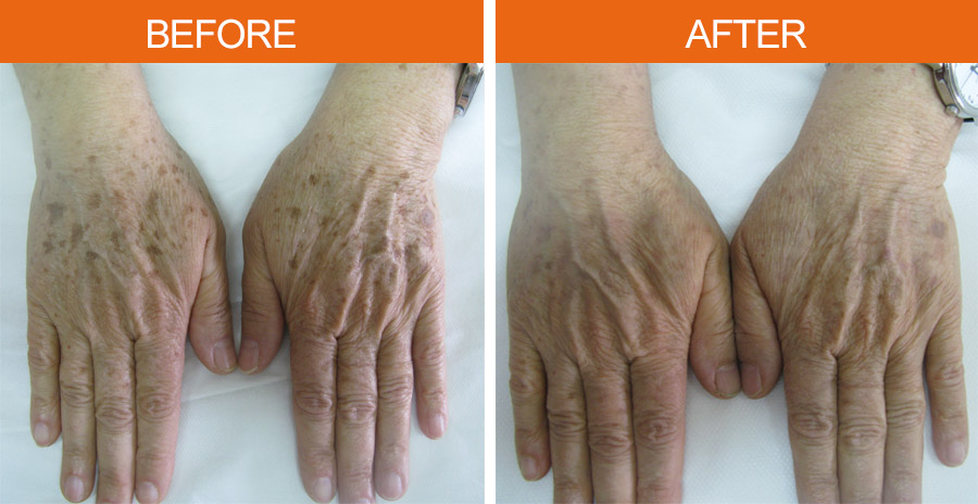 Pigmented Lesions Before & Ater