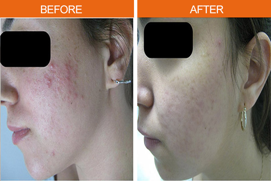 IPL Acne Therapy Before & After