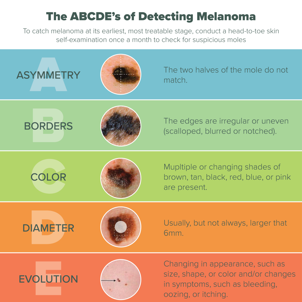 What to look for in Melanoma
