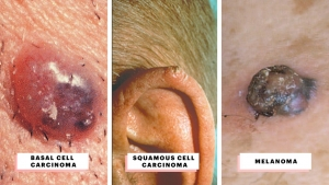 3 Major Types of Skin Cancer