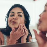 Skin Care Tips for Acne
