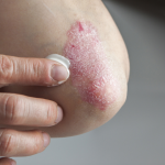 Applying Ointment on Psoriasis