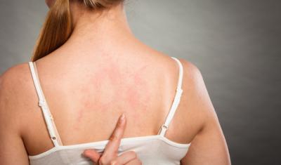 Managing Eczema Year Round
