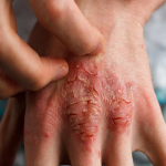 Psoriasis in WInter Months