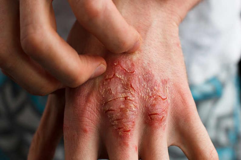 Psoriasis in WInter Months