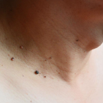 Skin Tags Facts