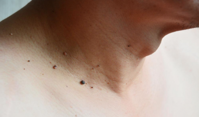 Skin Tags on Neck